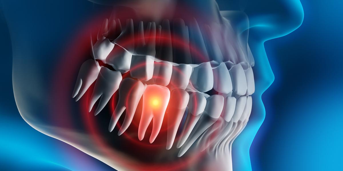Zähne und Kiefer: Leistungsturbo oder Krankmacher